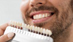 5 Advantages of Dental Veneers in Houston